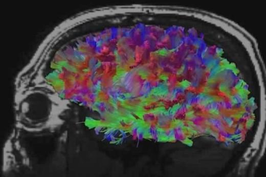 Brain Image Nov 2014